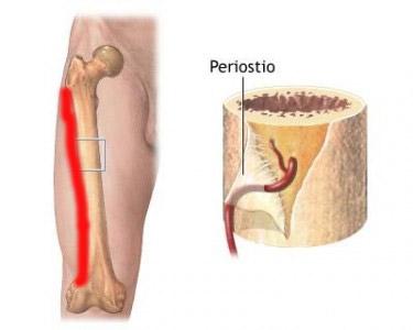 periostitis-tibial