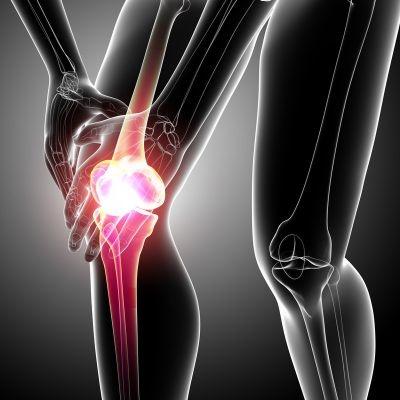 tratamiento esguince de rodilla